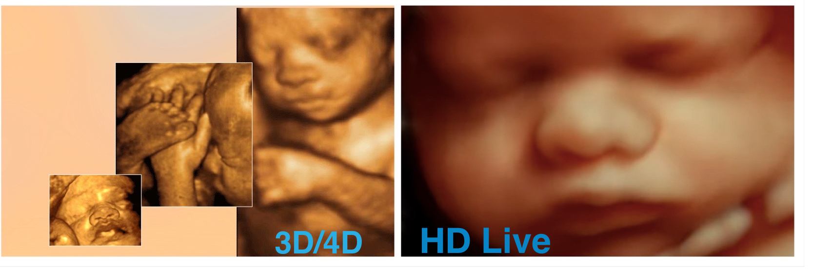 how much does your 3d ultrasound cost